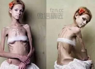 要么瘦,要么死!28岁姑娘连吃5个月水煮青菜后,就像一个70多岁的老太太