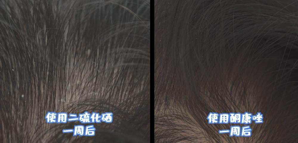 年纪轻轻的90后,竟然英年早秃了!实验告诉你,头发是怎么秃的!-小苏-每日微信精选