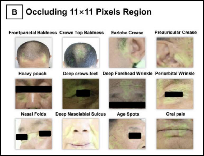 他们找了6000多张脸后发现,看脸部照片能评估一个人的冠心病风险-小苏-每日微信精选