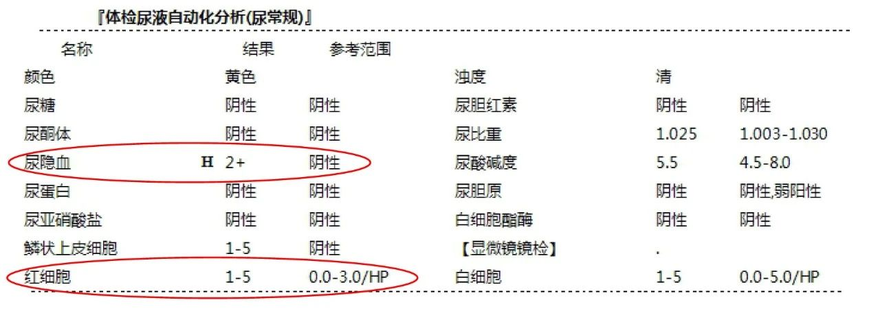 邵逸夫医院:尿常规检查能查出什么?